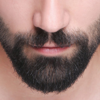injerto-pelo-barba