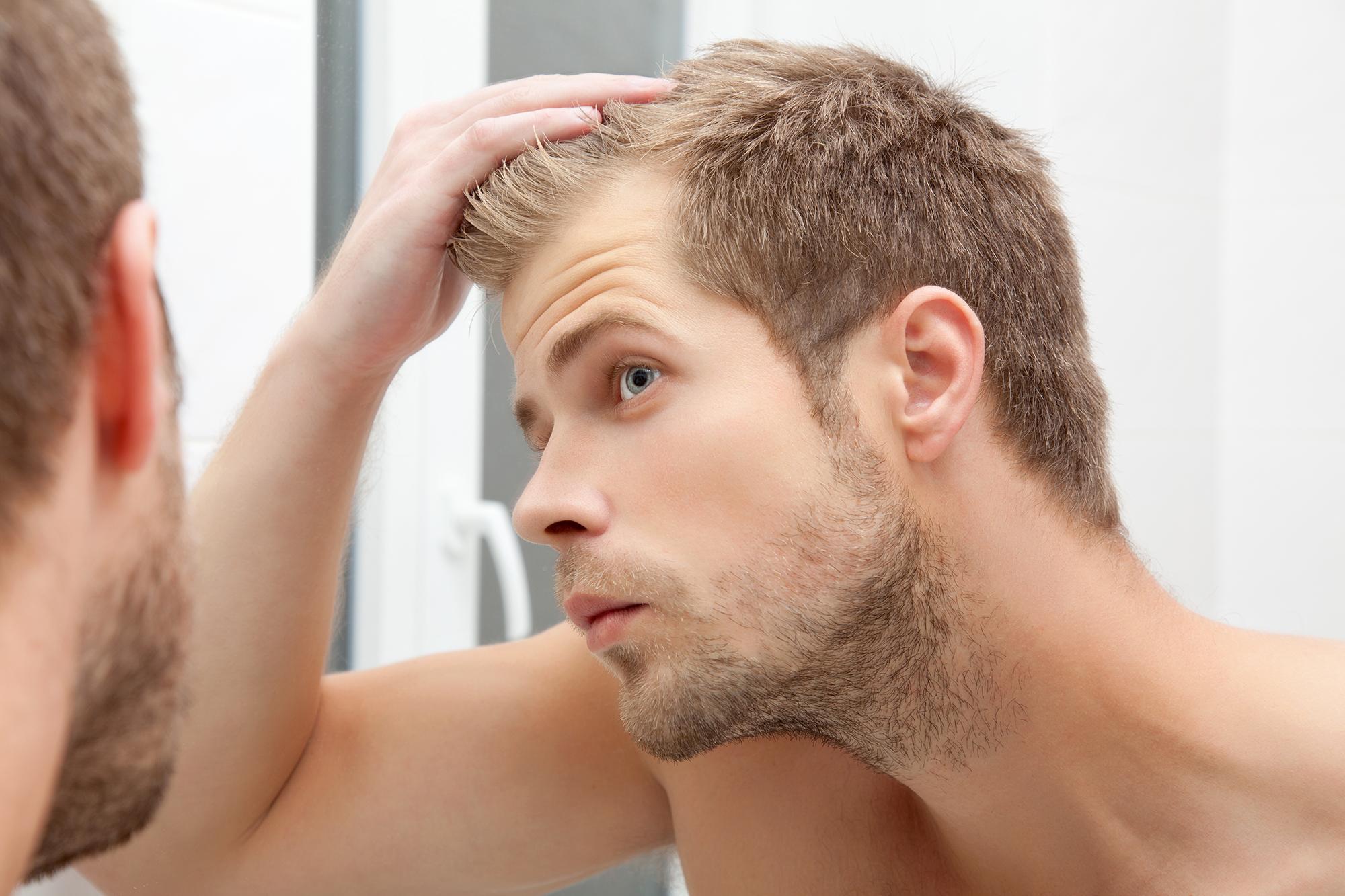 Caen los cabellos de las mujeres el tratamiento