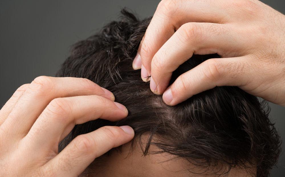 microimplante de pelo en cicatrices