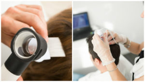En contadas ocasiones una intervención de implante capilar conlleva riesgos o complicaciones.
