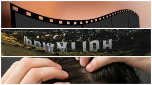 Al igual que Casillas, numerosas estrellas del celuloide también se han sometido a un injerto de pelo.
