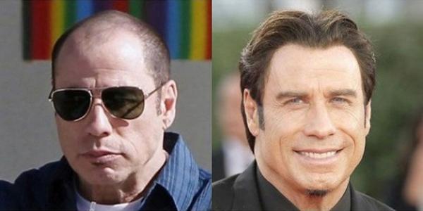 John Travolta antes y después de su injerto de pelo