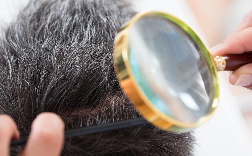 precio del injerto capilar o trasplante de pelo