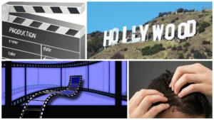 Muchos son los actores de cine que se someten a un injerto de pelo para solucionar sus problemas de alopecia.