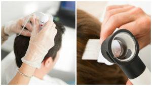 Métodos de implante capilar como FUE o FUSS son muy frecuentes.