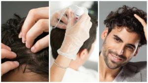 Solucionar sus problemas de calvicie es posible mediante la intervención de injerto de pelo.