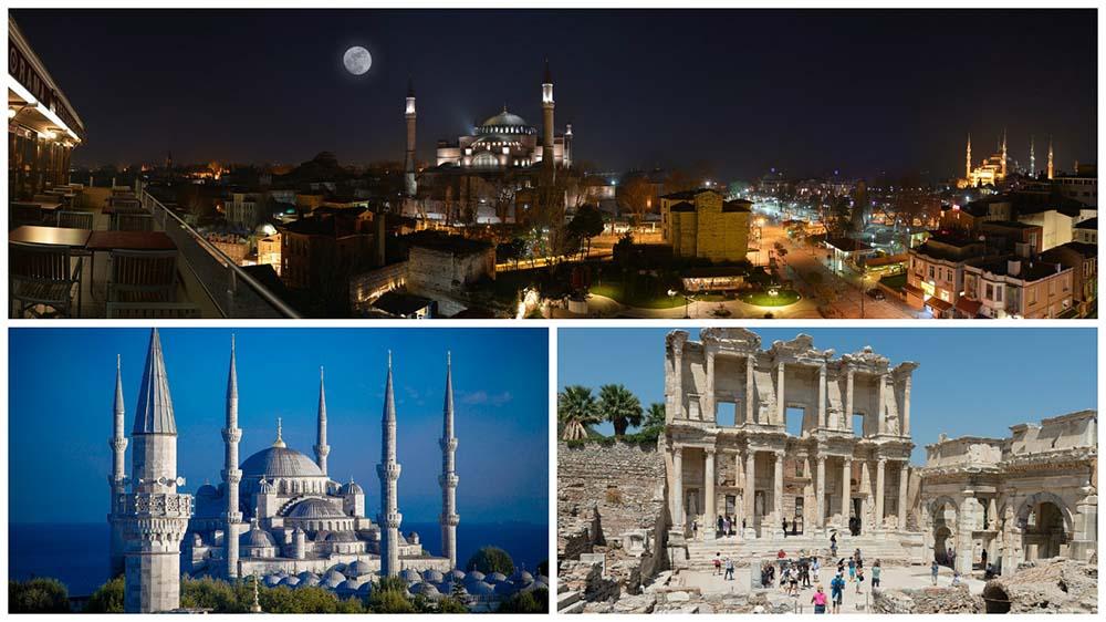 implante capilar en Turquía