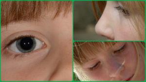 Las cefaleas y la tos crónica son dos de los principales síntomas de esta enfermedad.