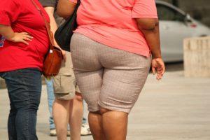 Los médicos recomiendan esta cirugía para personas con un índice de masa corporal igual o superior a 40