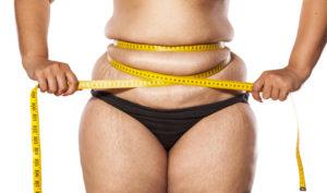 Entre las técnicas contra la obesidad se encuentra el bypass gástrico