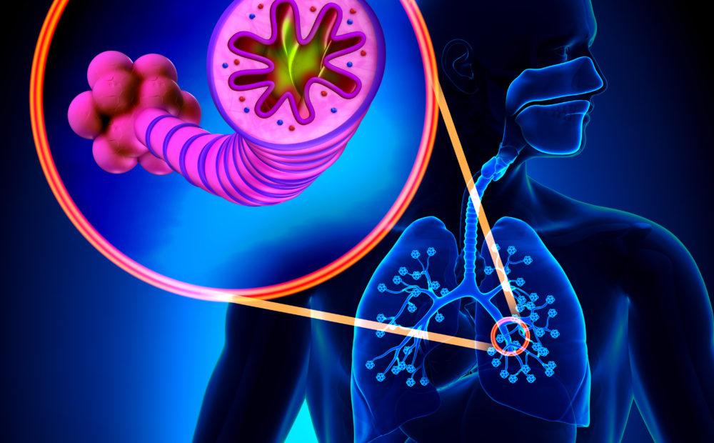 La bronquitis crónica es una grave afección de la que habrá que conocer sus riesgos