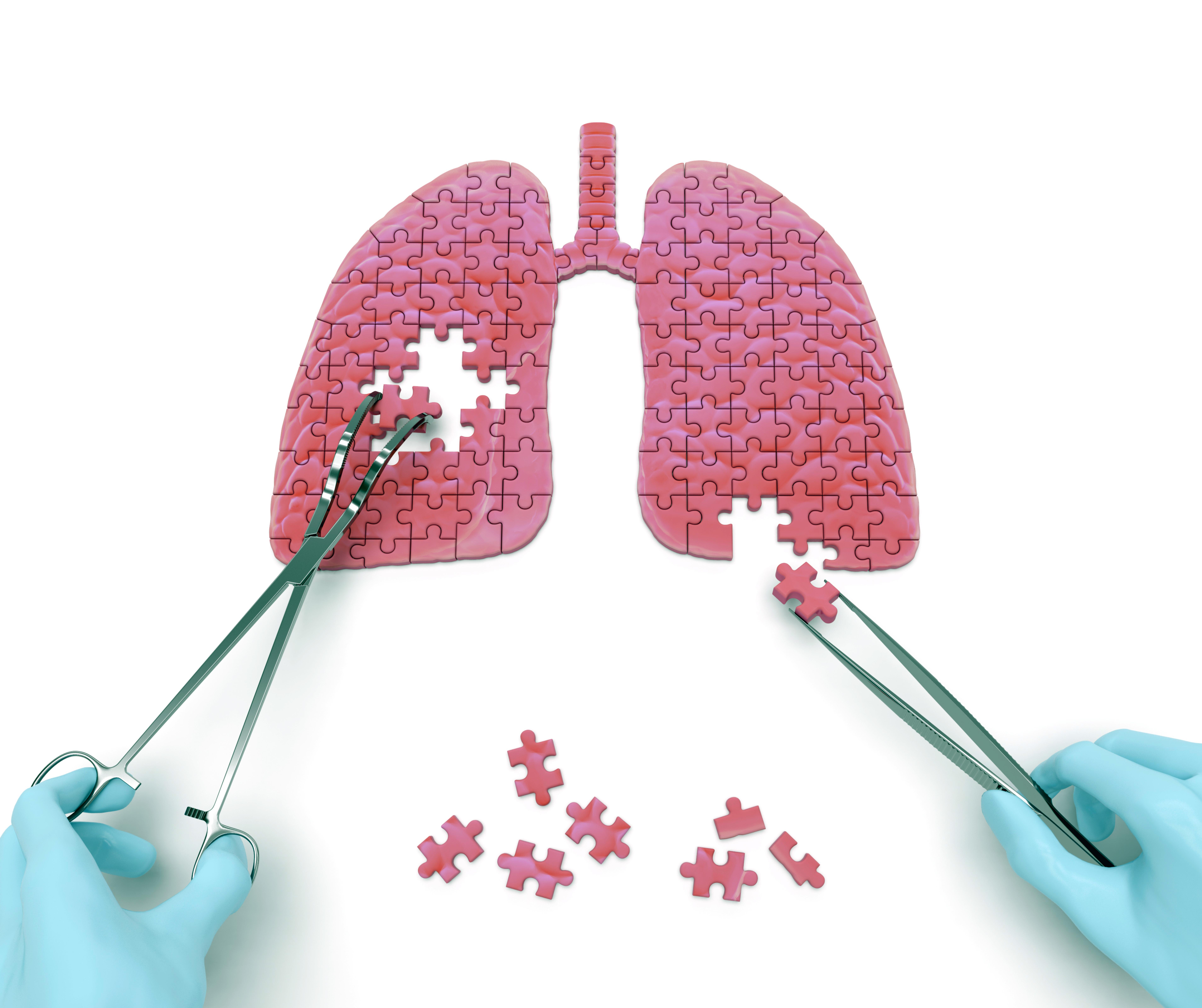 Tratamiento medico varices