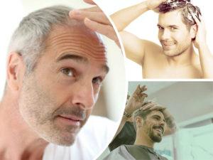 Existen diferentes tipos de alopecia.