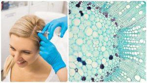 El plasma rico en plaquetas para evitar la caída del pelo y la alopecia, es un tratamiento en auge.