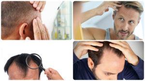 Este tratamiento no está recomendado para casos de pérdida total del cabello.