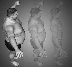 La pérdida de kilos con el balón intragástrico varía según el paciente, pero suele estar entre los 14 y los 30 kilos.