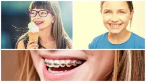 En niños siempre suele utilizarse la ortodoncia de metal.