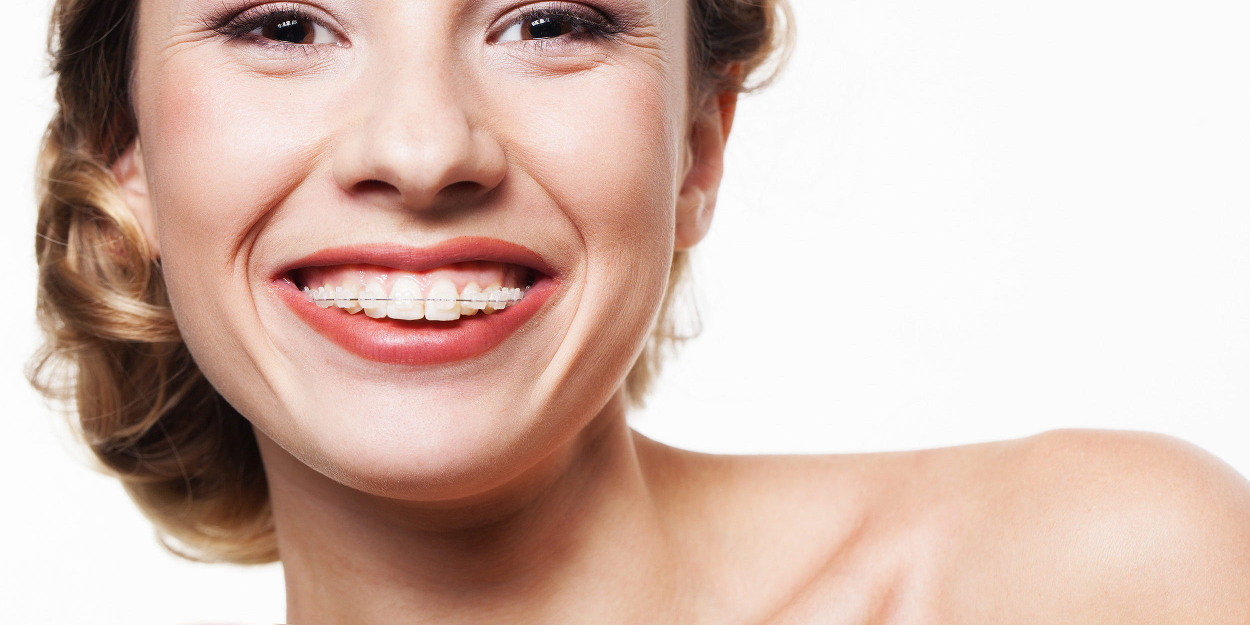 C mo es la ortodoncia est tica o de zafiro bonom dicoblog - Hemorroides alimentos prohibidos ...