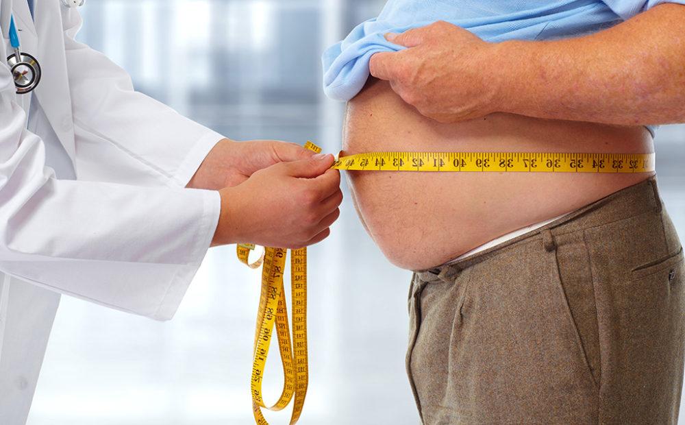Reducción de estómago