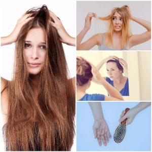 El problema de la caída del pelo no repercute solo en los hombres, sino que son muchas las mujeres que lo sufren.