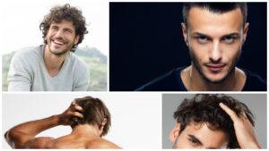 Son muchas las dudas y preguntas frecuentes sobre la caída del cabello, un problema que afecta especialmente a los hombres.