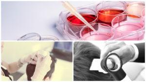 El plasma enriquecido en plaquetas es una técnica que se utiliza hoy en día, y que guarda muchas similitudes con el tratamiento con células madre para la alopecia.
