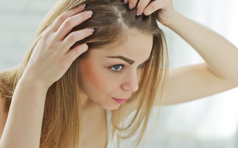 Existen diversos tratamientos para evitar la caída del pelo en mujeres