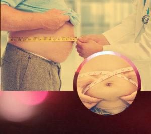No todas las personas obesas son aptas para realizarse una cirugía de la obesidad.