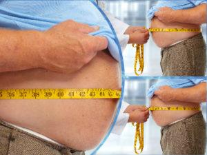 Con la cirugía de la obesidad se consiguen eliminar los riesgos derivados del desmesurado peso de sus pacientes.