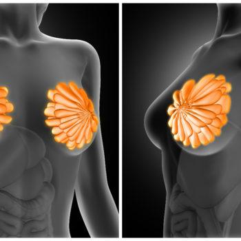 glándulas mamarias