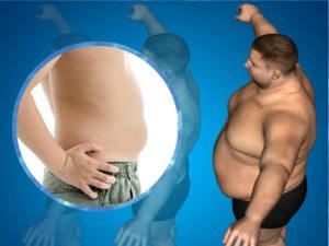 Los resultados de la cirugía de la obesidad se mantendrán siempre y cuando se sigan las recomendaciones de los especialistas.
