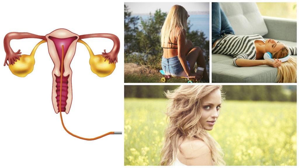 La mayoría de casos de cáncer de cuello de útero están relacionados con el virus del papiloma humano.