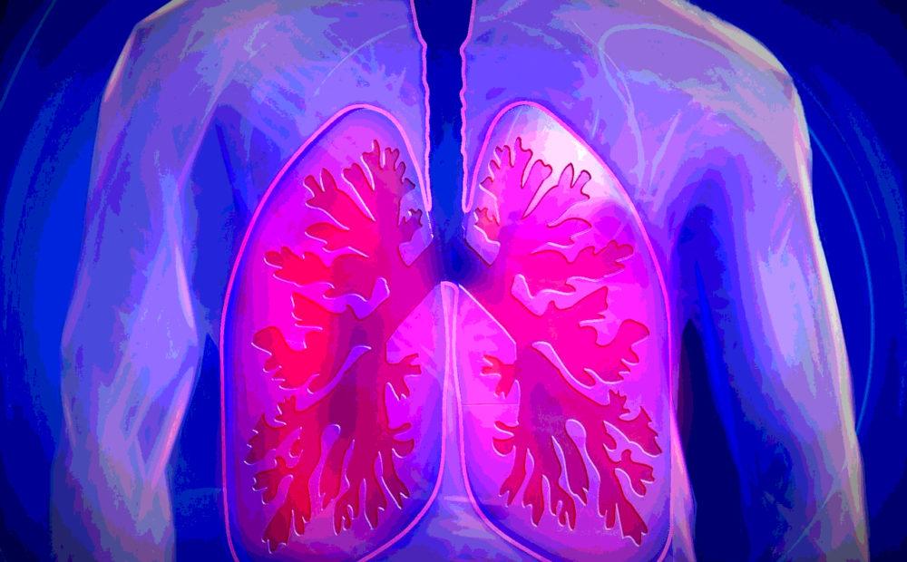 La bronquitis es aquella inflamación de los bronquios que puede derivar en severas complicaciones.