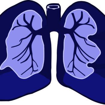 El contagio de la bronquitis puede transmitirse sencillamente.