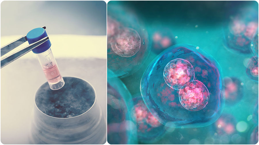 Al trasplante de médula ósea también se le conoce como trasplante de células madre.