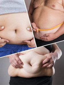 Además de tener en cuenta el exceso de peso, para el bypass gástrico en la Seguridad Social, se estudiará que haya enfermedades asociadas a la obesidad.