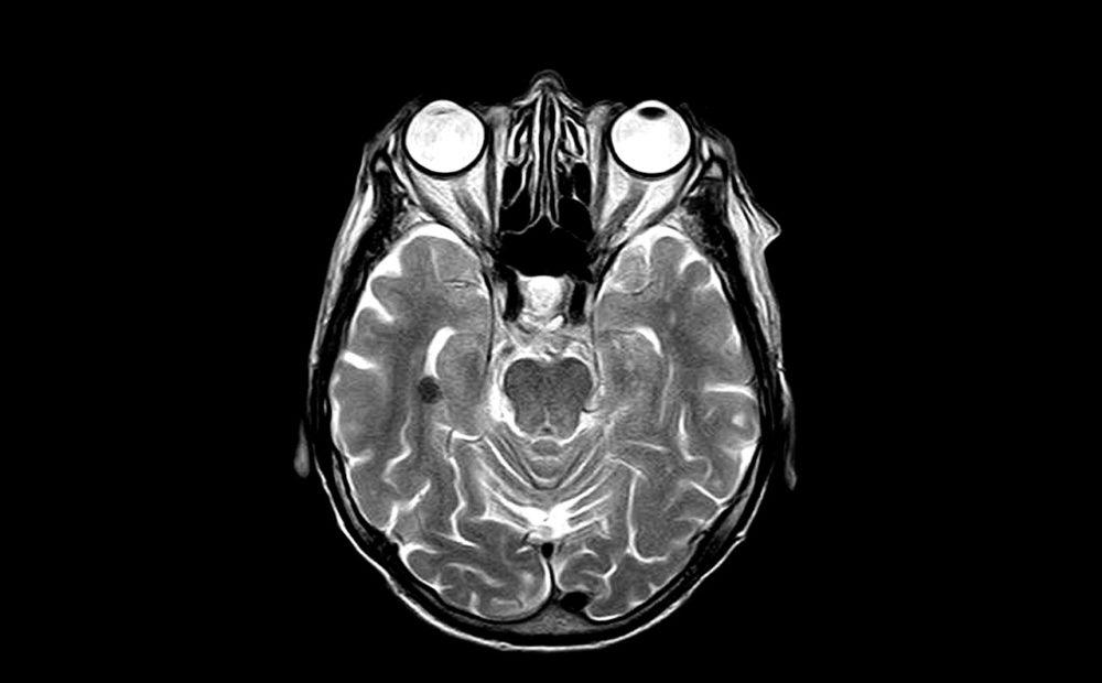 La resonancia magnética abierta supone distintos beneficios en relación a la cerrada.