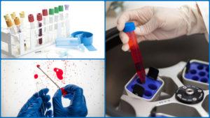 El test del análisis nutrigenético se inicia estudiando el ADN de la persona para buscar determinados genes.