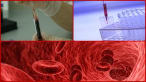 Un sencillo análisis de sangre puede ser suficiente para la realización de esta prueba.
