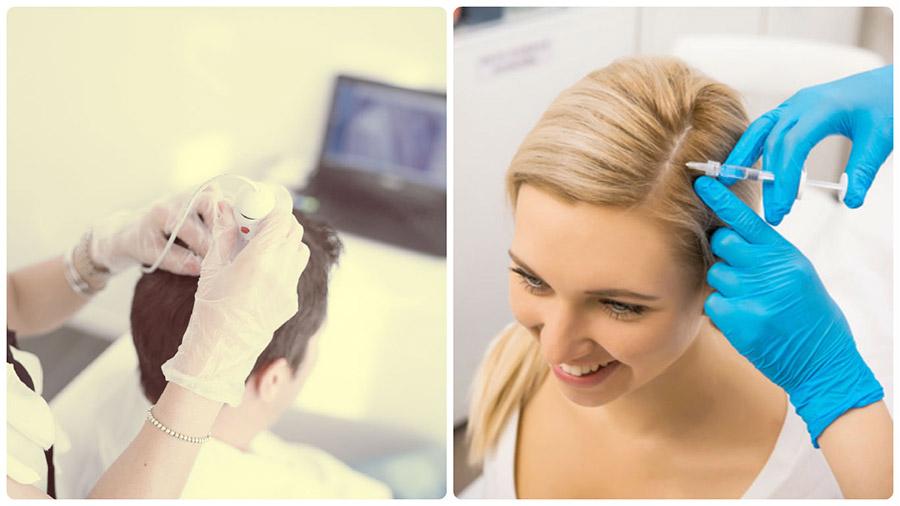 El Plasma Rico en Plaquetas y las células madre son dos de los tratamientos contra la caída del pelo y alopecia más innovadores.
