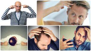 La alopecia androgenética afecta sobre todo a los hombres.