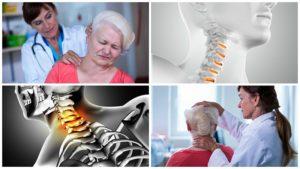 Existen diferentes tipos de artrosis, entre ellos, la artrosis de cuello, que afecta a las vértebras.