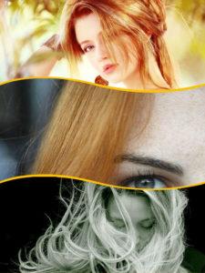 La piel del cuero cabelludo puede permanecer afectada de forma crónica con esta patología.