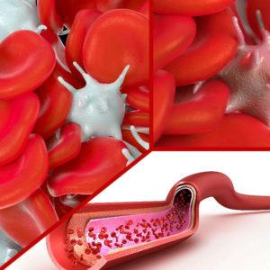 Los síntomas de la hemoglobina alta suelen aparecer porque la persona padezca alguna afección.