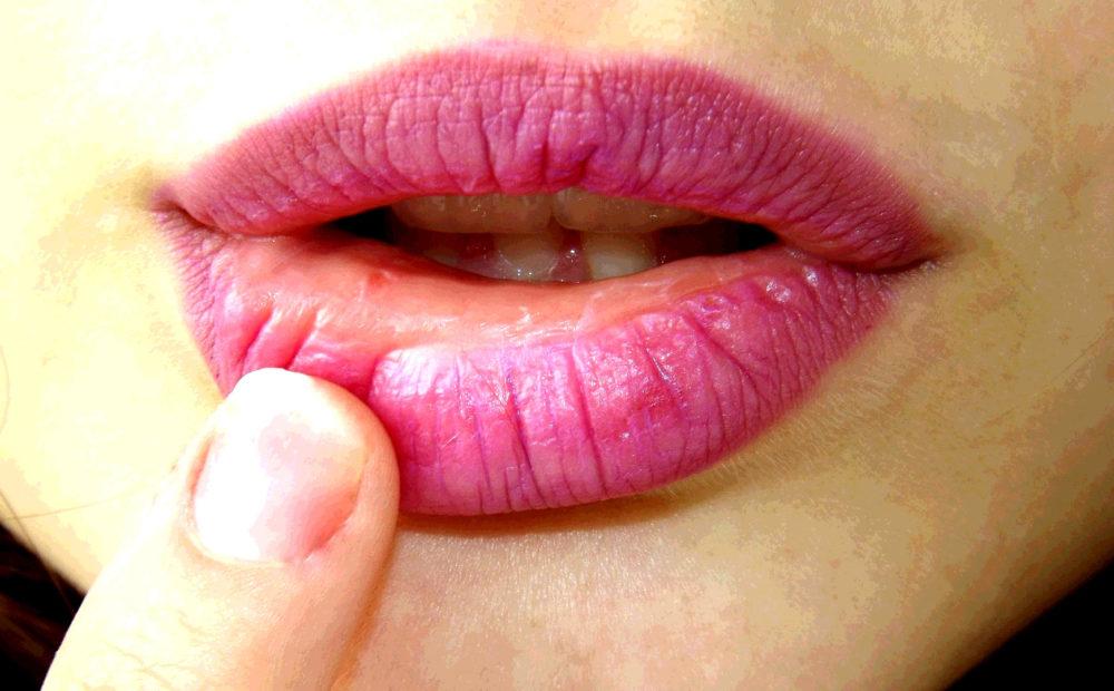 Algunos síntomas del herpes labial pueden requerir la aplicación de un tratamiento específico, aunque no es lo habitual.