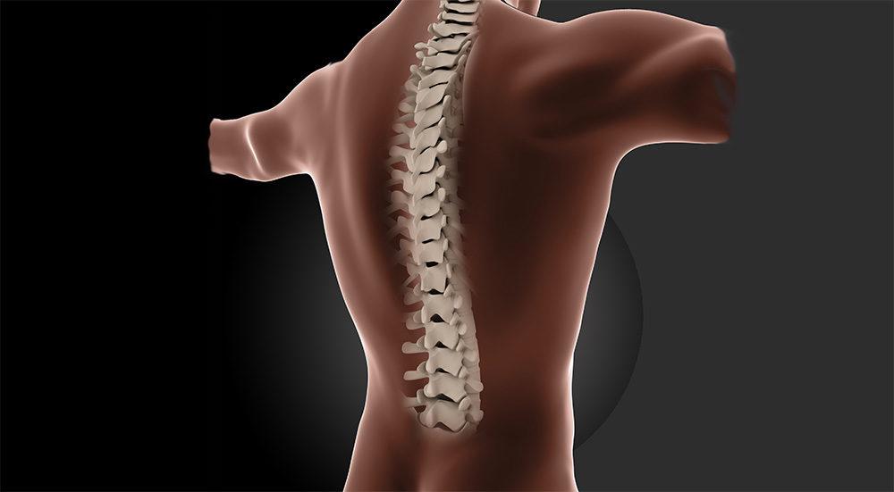 osteoporosis de columna