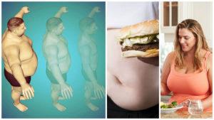 Después de colocar el balón en el estómago, el paciente debe modificar sus hábitos de alimentación.
