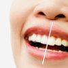 Seguir determinados consejos antes y después de un blanqueamiento dental aumenta la eficacia del tratamiento.