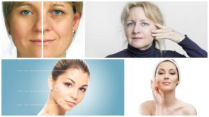 La medicina estética dispone de diversos métodos para la eliminación de manchas en la piel.