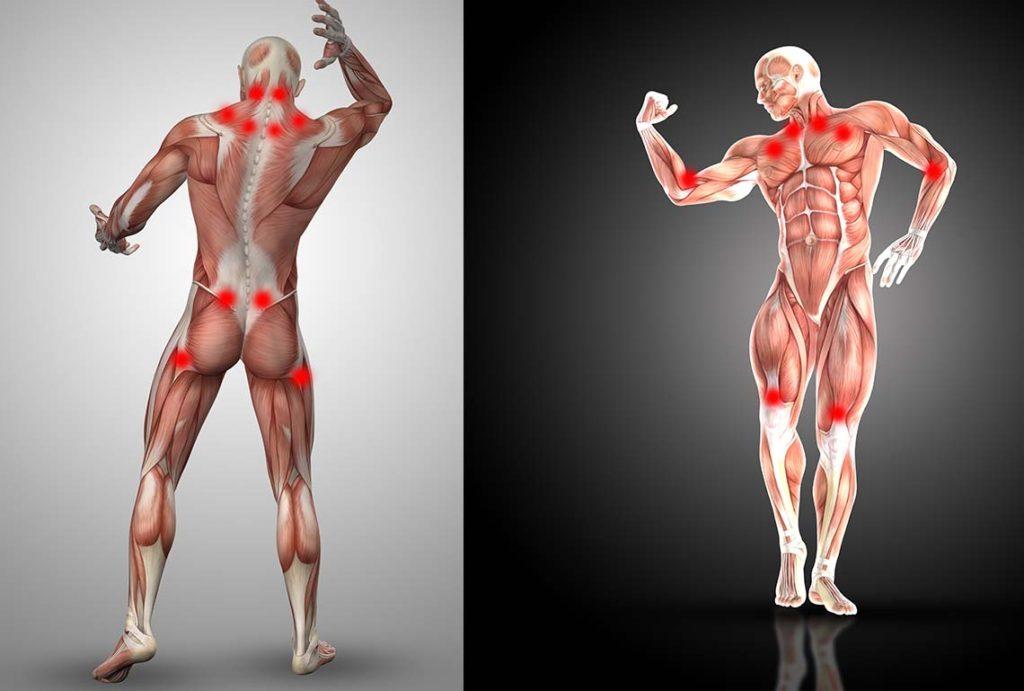 Puntos gatillo o puntos de dolor en la fibromialgia.